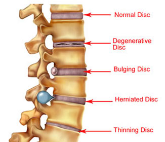 Signs of herniated disk in lower back